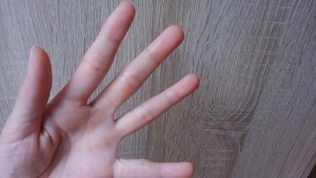 左手薬指の痛みを感じるのはゴルフが原因?防ぐためには?